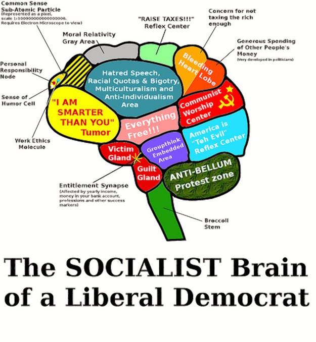 socialist hjerne2