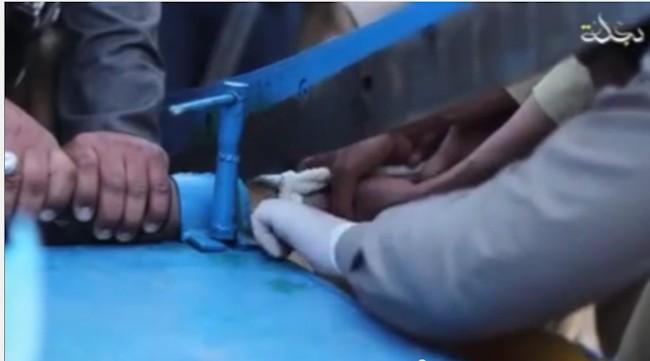 ISIS skærer hånden afen tyv